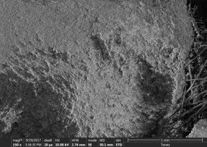 Under microscope, calcium deposits blind the surface of the filter fibres